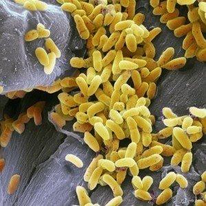 Batteri difterite batterio