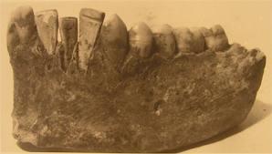 dentista roma antica