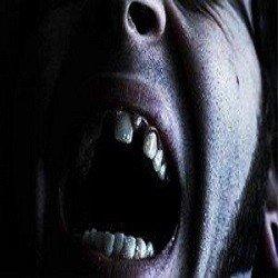 Sognare denti che cadono