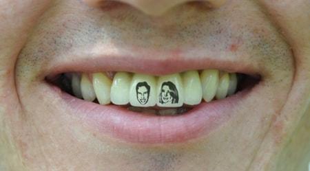 Tatuaggi sui denti del tuo dentista roma migliore.