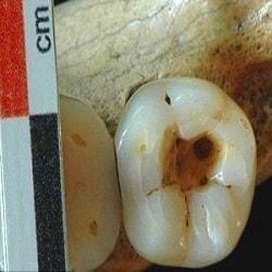 dente cariato e dente curato dai nostri antenati.