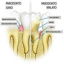 gengivite e parodonto