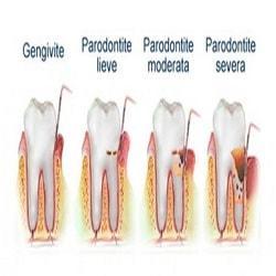 Parodontite