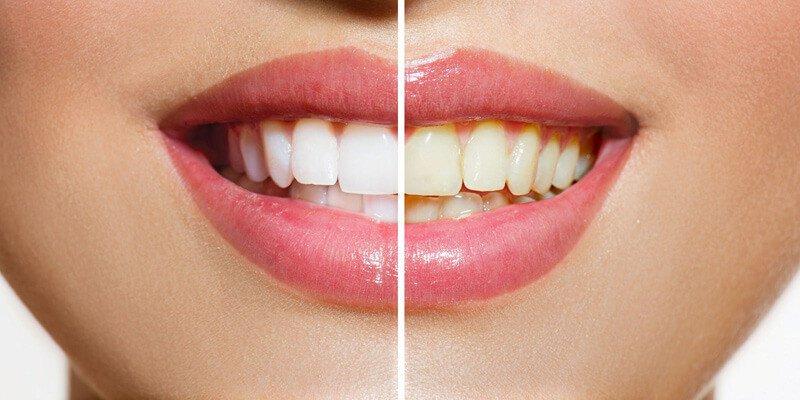 Sbiancamento dentale: come avere denti più bianchi