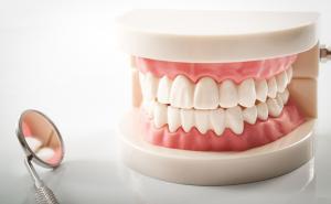 Le protesi dentarie mobili