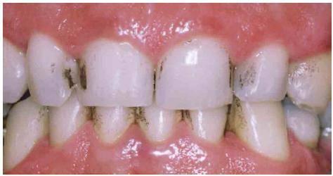 denti macchiati di nero bambini