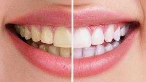 denti bianchi prima e dopo