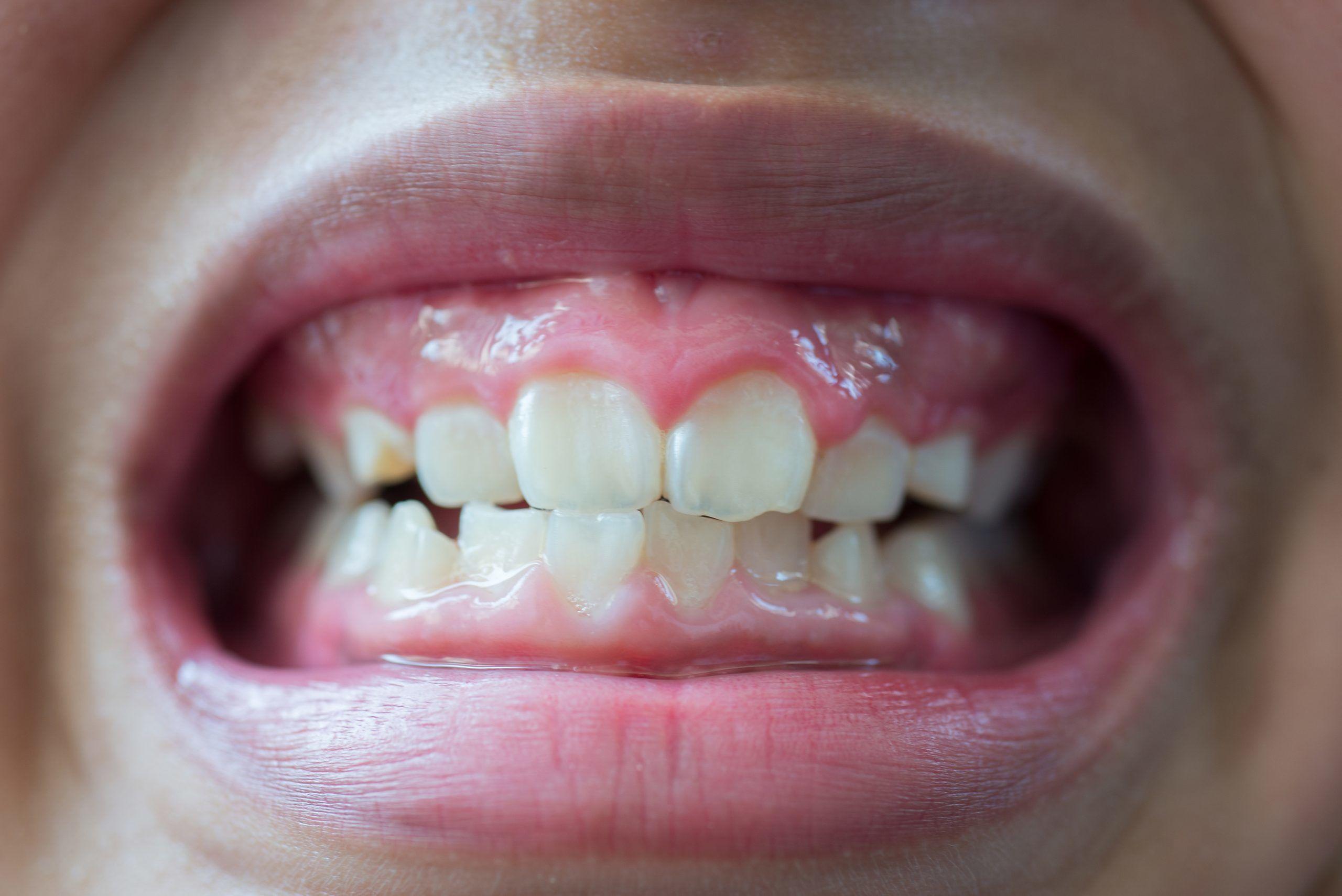 Erosione dentale e reflusso gastroesofageo