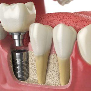 Implantologia dentale - Impianti denti