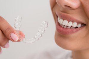le faccette dentali