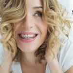 Come mai crescono i denti storti?