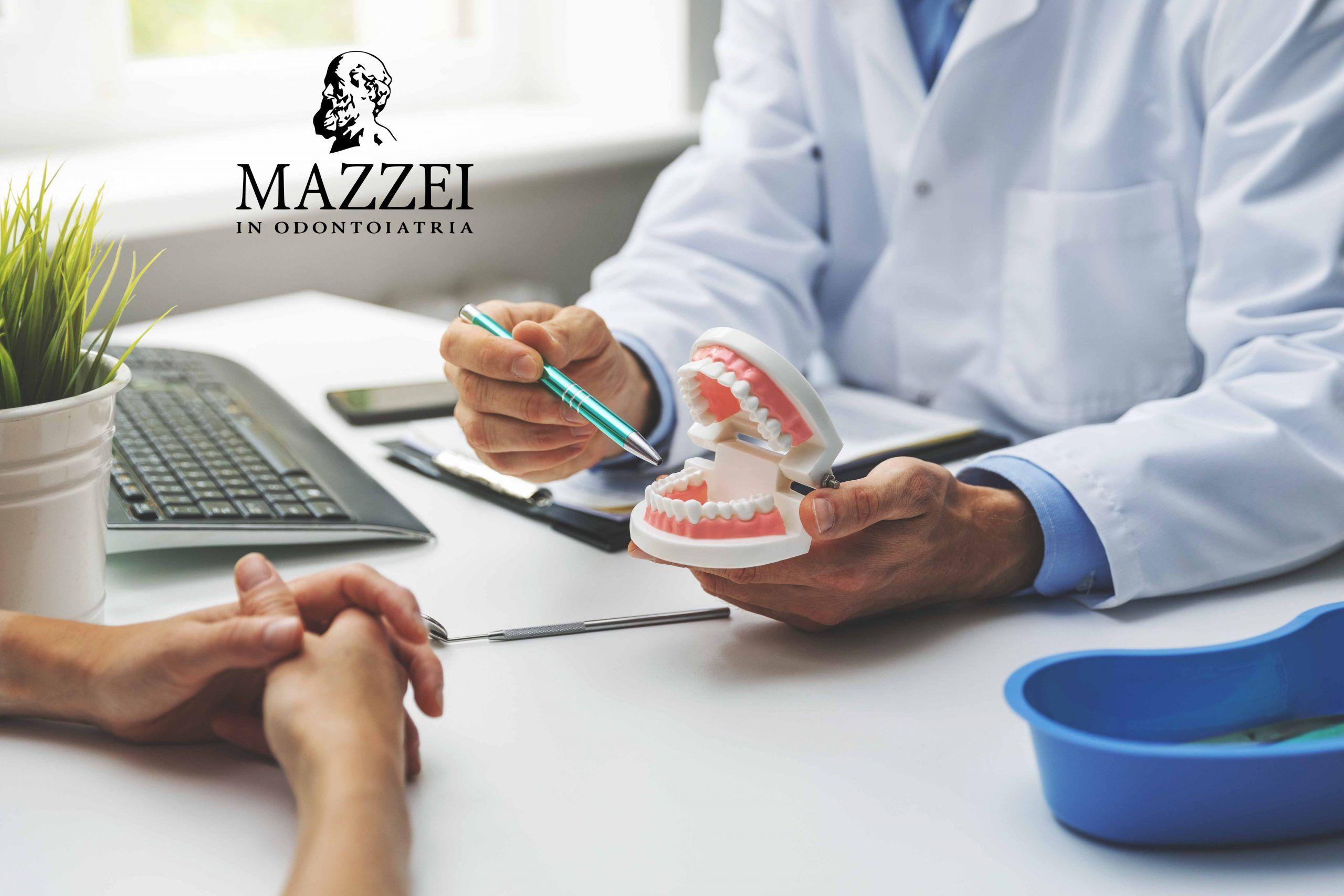 Malocclusione dentale: sintomi, cause e rimedi