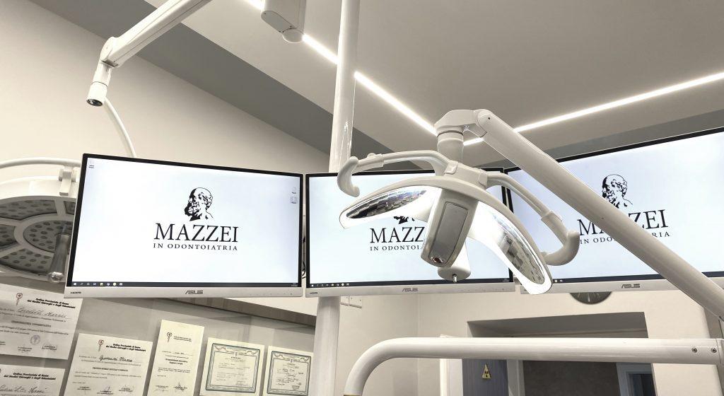 schermi poltrona dentista roma mazzei
