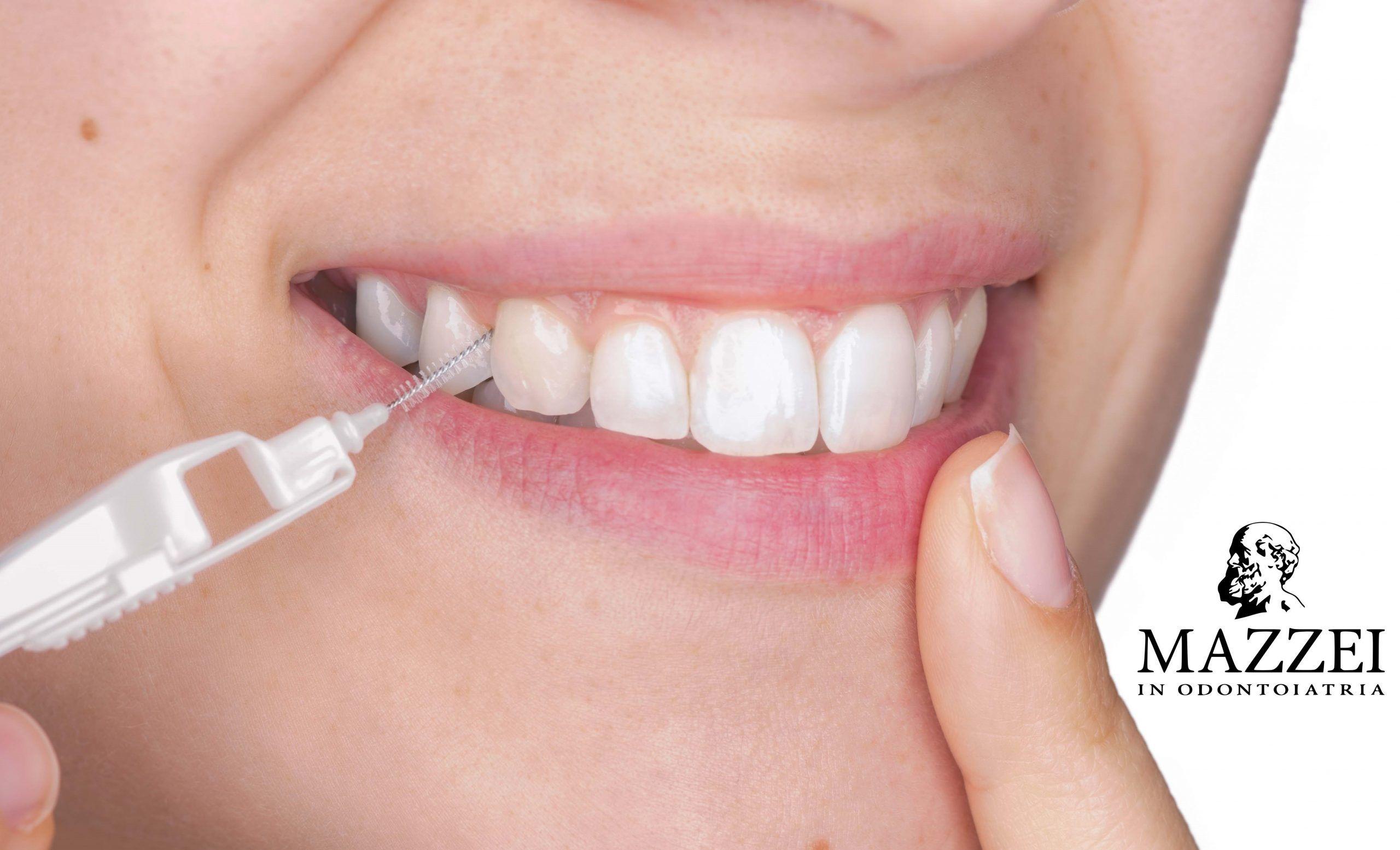 Scovolino denti: cos'è e come si utilizza