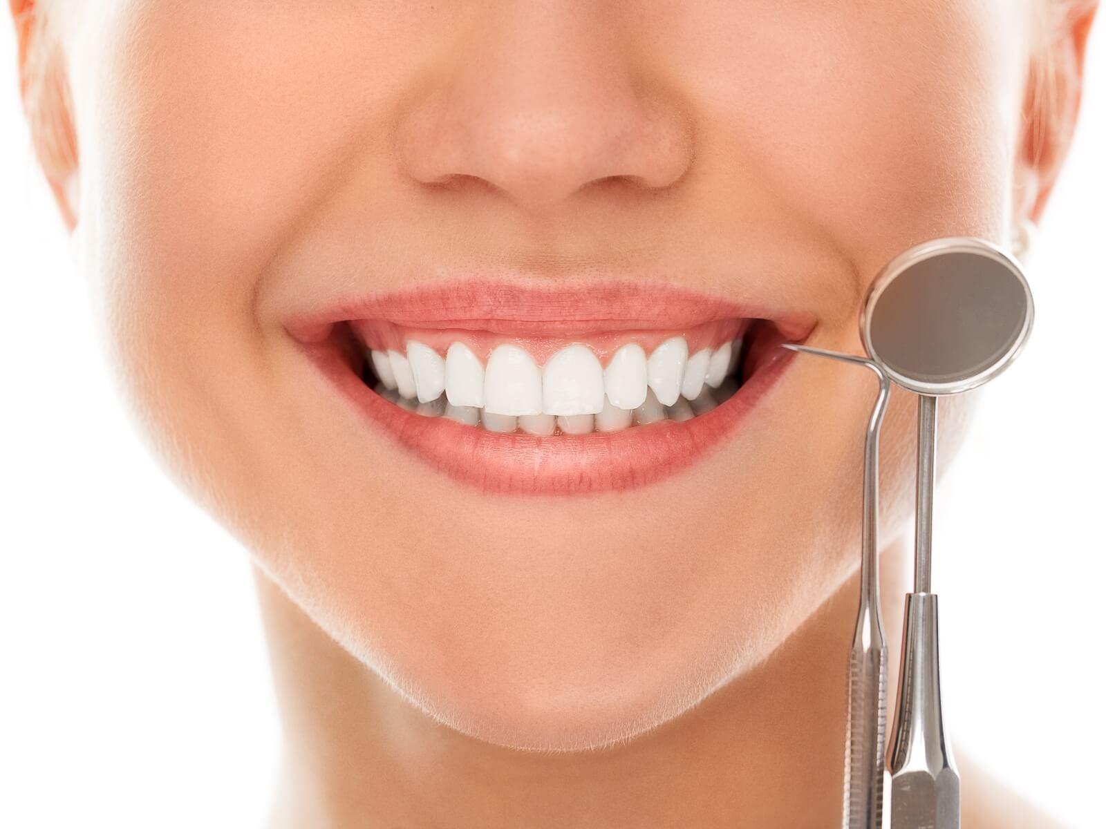 alta estetica - sorriso migliore denti bianchi