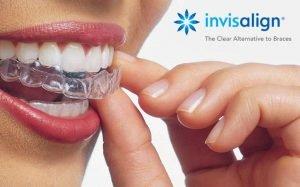 Ortodonzia Invisibile - Apparecchio Invisalign